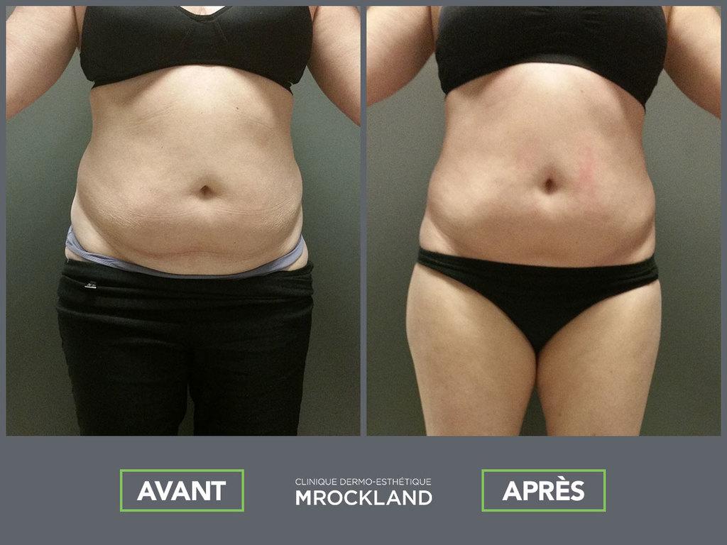 alternative liposuccion MRockland